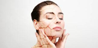 Factores que causan la piel seca - cantineoqueteveo news