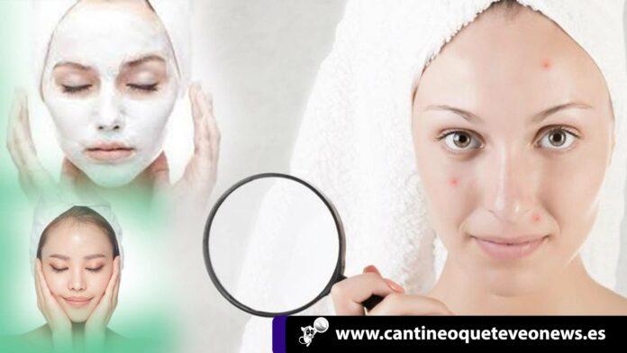 acné en el rostro - Cantineoqueteveo news