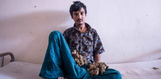 Hombre-árbol-de-Bangladesh-cantineoqueteveonews