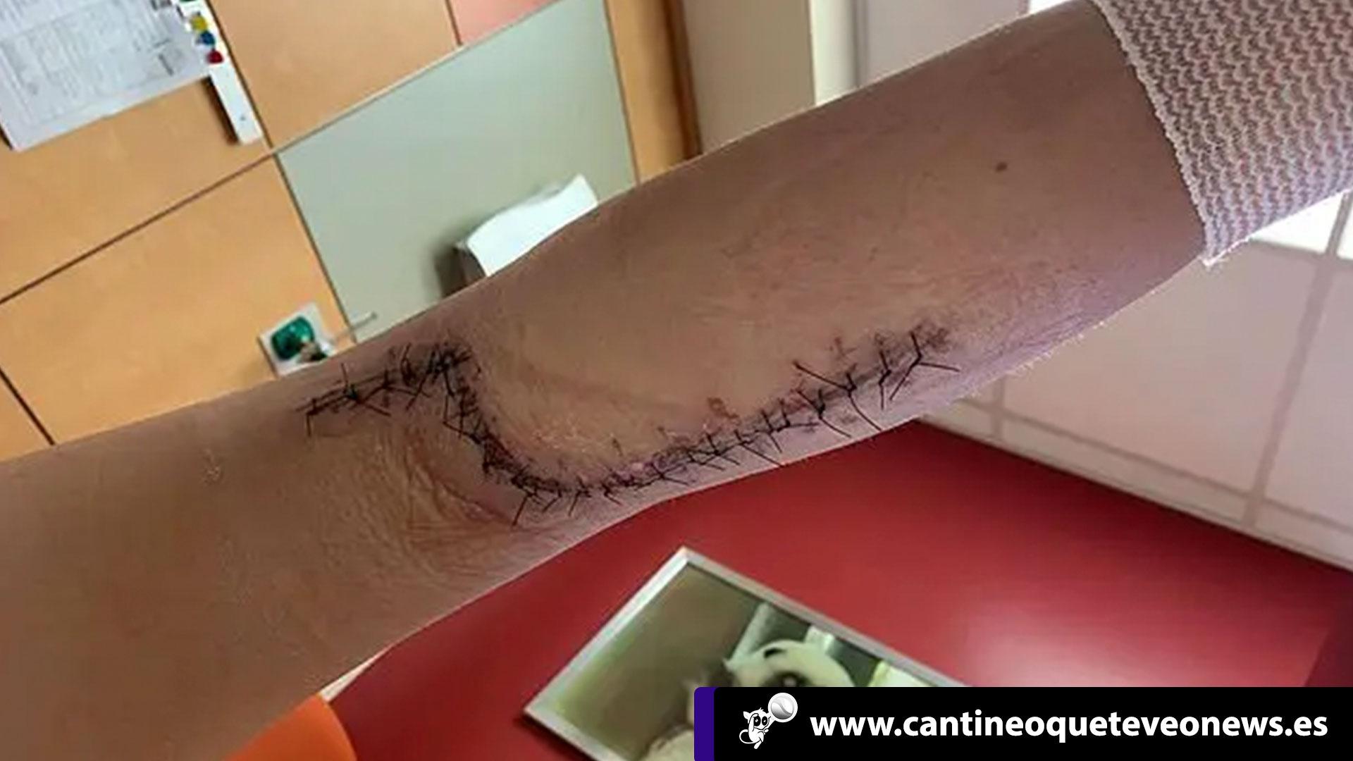 Cantineoqueteveo News - Niña infectada por bacteria